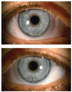 Same patient wearing a hydrogel DD lens in the right eye (top) and a SiHy DD lens in the left eye (bottom) for an eight-hour period, with a noticeable difference in limbal hyperaemia. (Images courtesy of Dr Shehzad Naroo). Taken from Jones & Woods. 16
