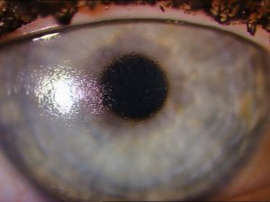 Poor wetting SiHy DD in a female patient. The lens has been worn for only 3 hours and shows marked deposition and poor wettability.