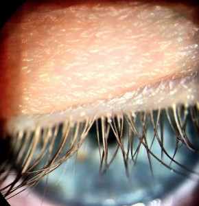Figure 1: Example of upper eyelid and lashes taken through slit lamp eyepiece using a phone