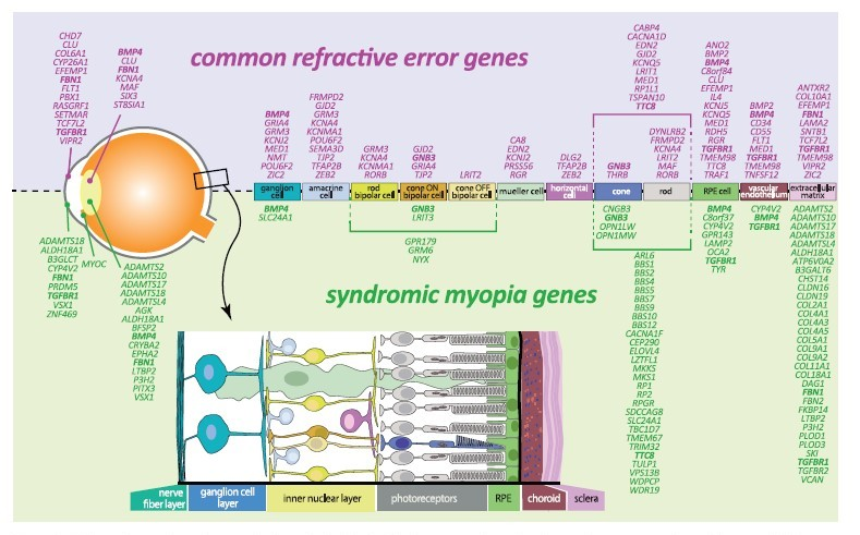 Figure 1: Schematic overview of expression in retinal cells of refractive error and syndromic myopia genes according to literature. Bold: genes identified for both common refractive error and in syndromic myopia.  Diagram from sourced from Tedja MS, et al. IMI – Myopia Genetics Report.1