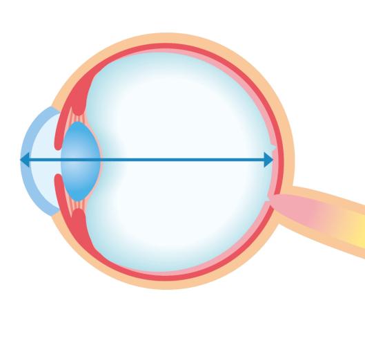 Should We Control Myopia Progression or Eye Growth?